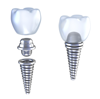 Diagram of dental Implants by dentist in Muncy, PA.