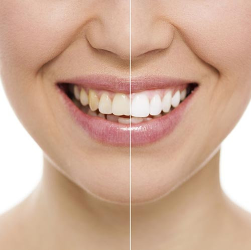 Teeth Whitening at Bennardi & Barberio General Dentistry